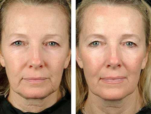 thermage-skin-tightening-treatment-image